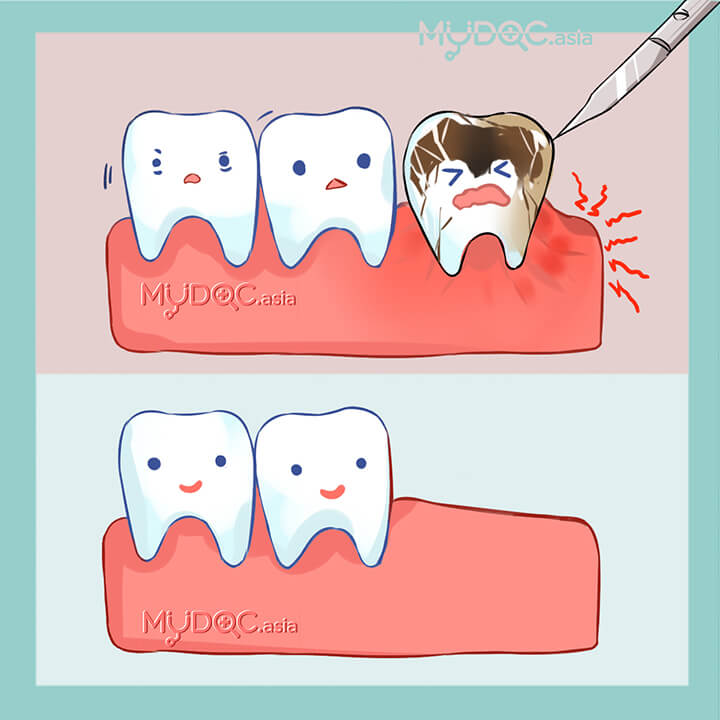 Tooth Extractions (Surgery)
