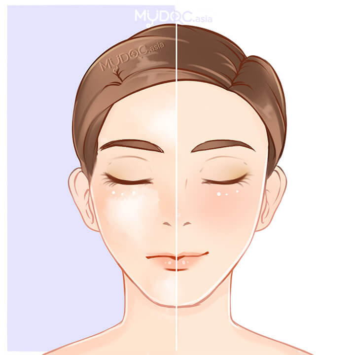 Uneven Skin Tone treatment