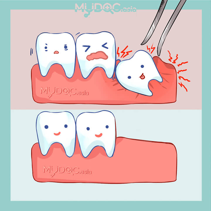45 Best Wisdom Tooth Extraction In Kuala Lumpur Price Guide Reviews