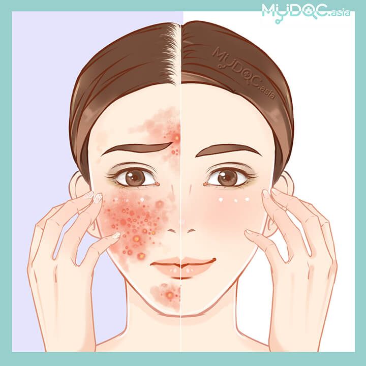 71 Best Dermatologist Skin And Specialist Clinics In Malaysia